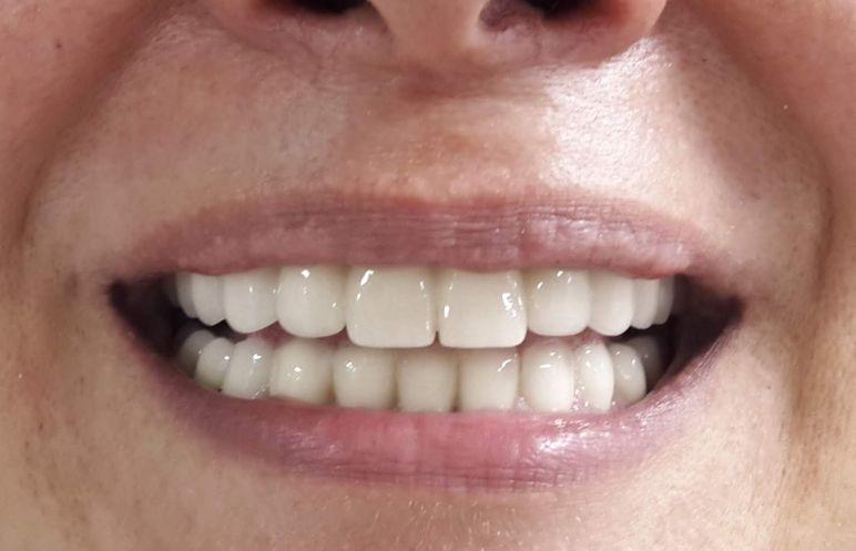 Ön Diş Estetik Tedavisi
