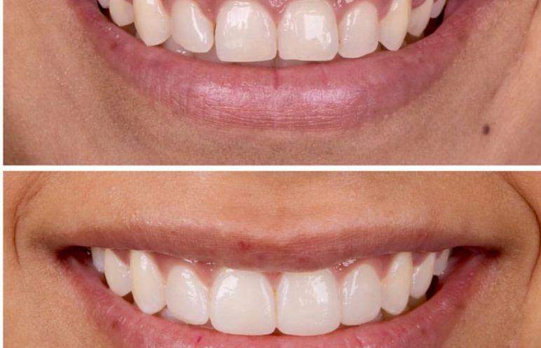 Diş Temizliği Dişi Beyazlatır mı?